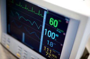 EKG Machine