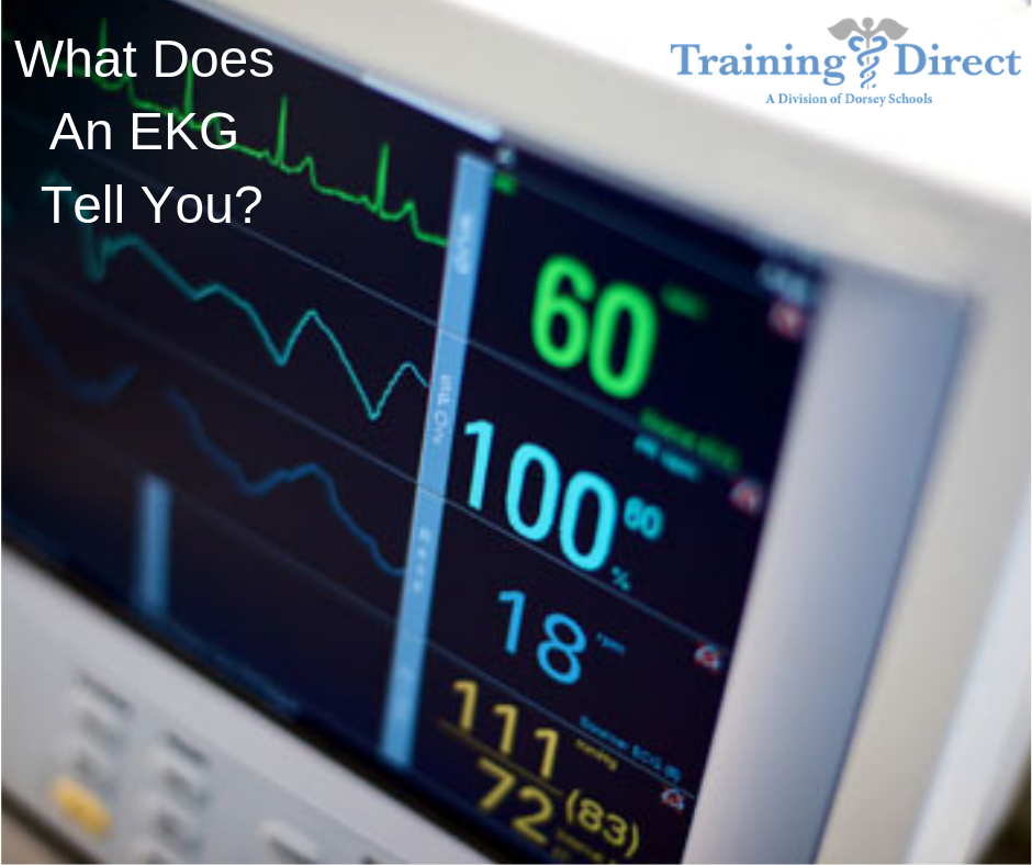 What does an EKG Test for?